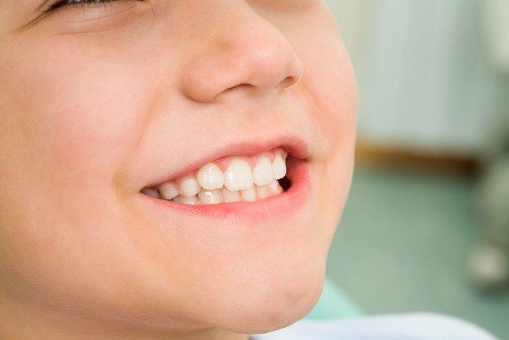 Zęby dziecka – jak o nie dbać?