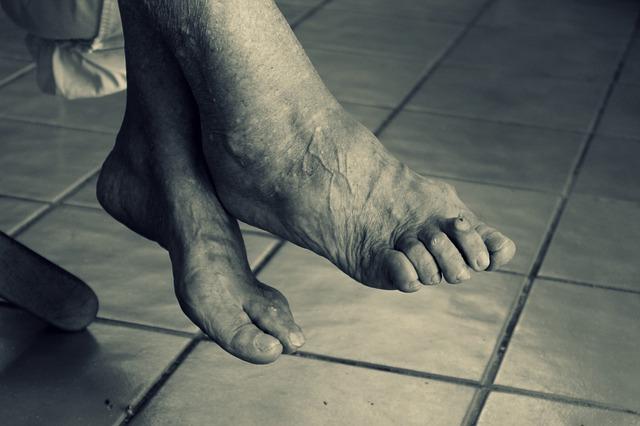 Ostroga piętowa – palący problem stóp