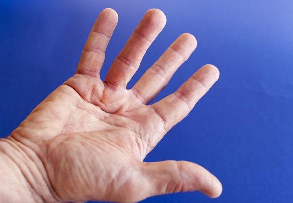 Metody leczenia przykurczy Dupuytrena