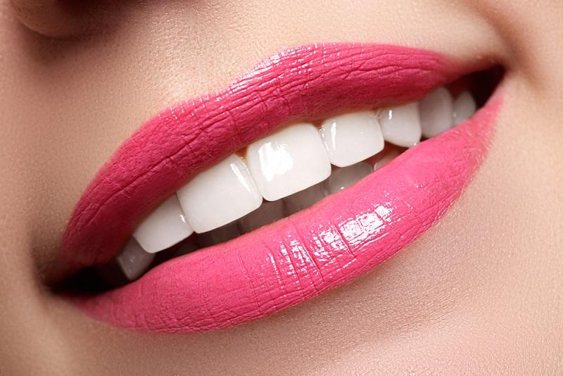 Jakie są zalecenia po wybielaniu zębów?